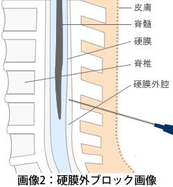 illustration_03